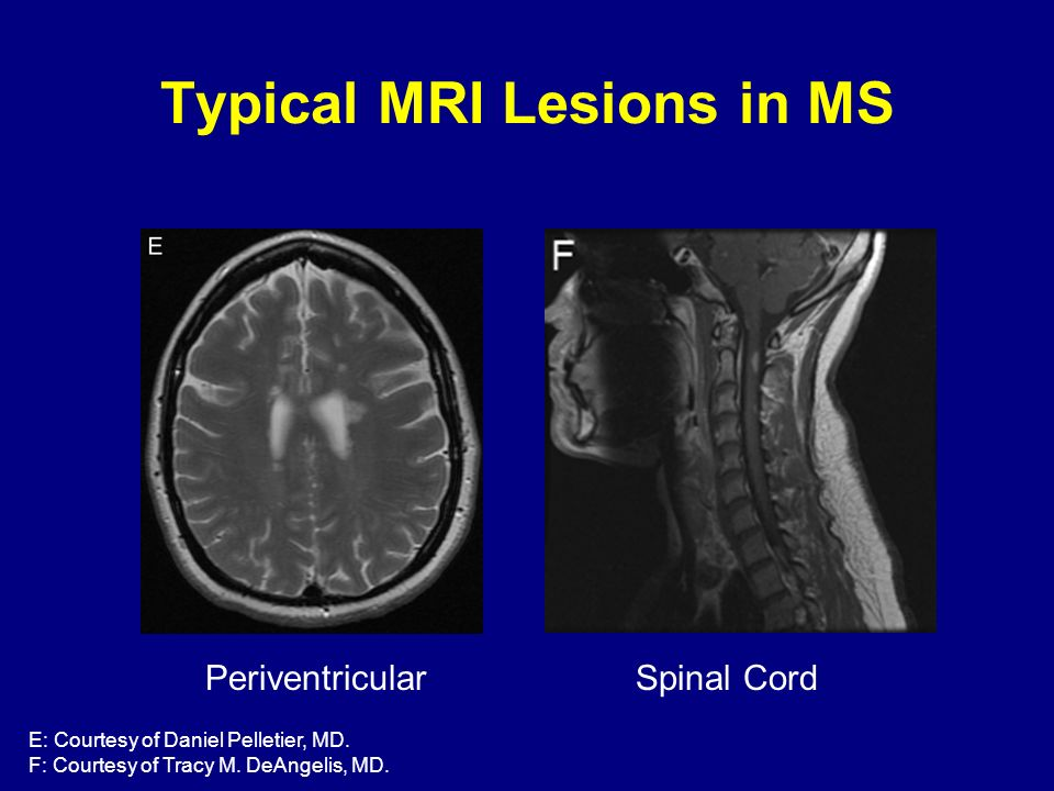 Spinal Cord Periventricular E: Courtesy of Daniel Pelletier, MD. F: Courtesy of Tracy M. DeAngelis, MD. Typical MRI Lesions in MS