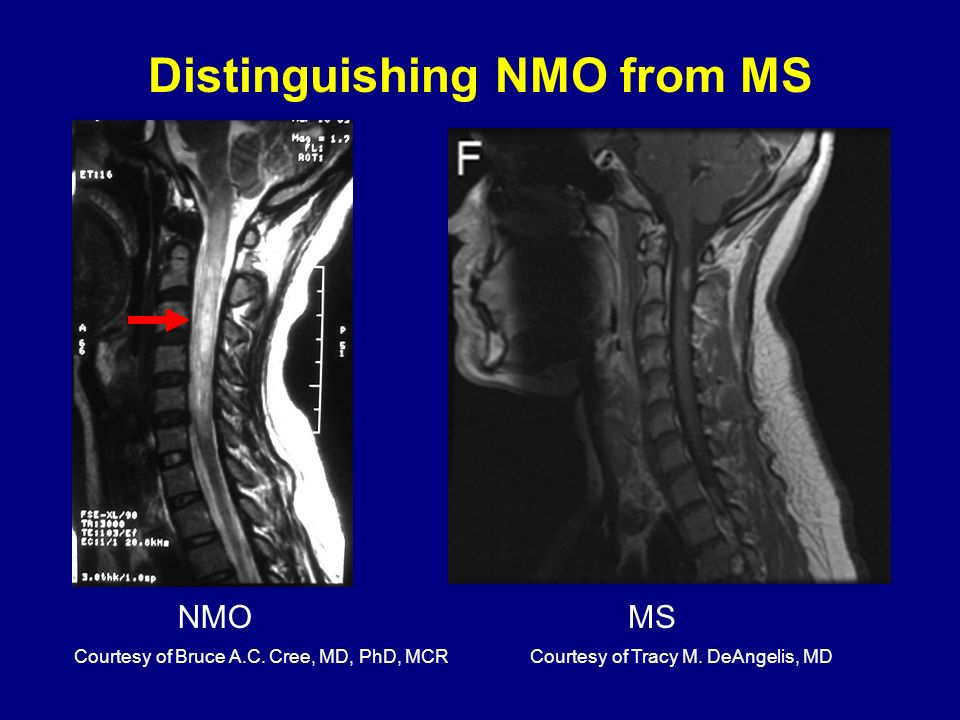 NMO Distinguishing NMO from MS Courtesy of Bruce A.C. Cree, MD, PhD, MCRCourtesy of Tracy M. DeAngelis, MD MS