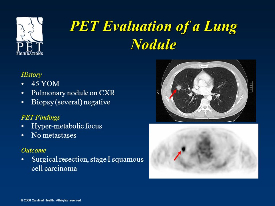© 2006 Cardinal Health. All rights reserved. PET Evaluation of a Lung Nodule History 45 YOM Pulmonary nodule on CXR Biopsy (several) negative PET Find
