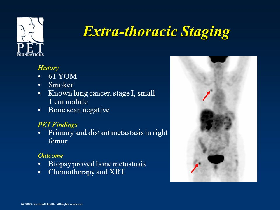 © 2006 Cardinal Health. All rights reserved. Extra-thoracic Staging History 61 YOM Smoker Known lung cancer, stage I, small 1 cm nodule Bone scan nega