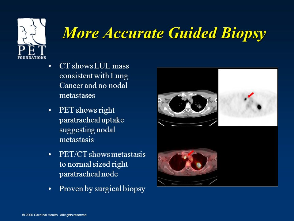 © 2006 Cardinal Health. All rights reserved. More Accurate Guided Biopsy CT shows LUL mass consistent with Lung Cancer and no nodal metastases PET sho