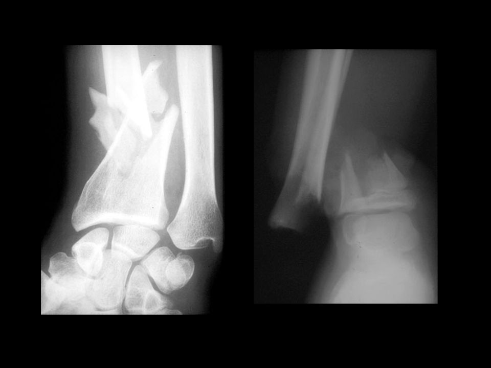 communited Open fracture