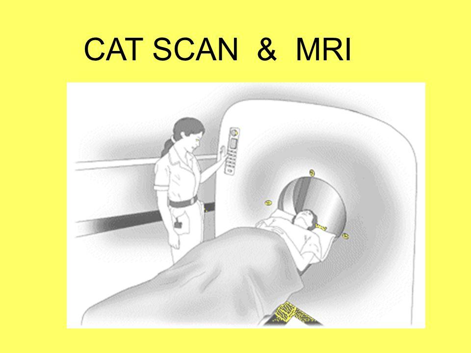 CAT SCAN & MRI