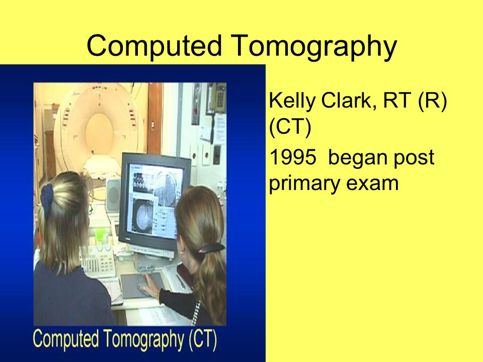 Computed Tomography Kelly Clark, RT (R) (CT) 1995 began post primary exam
