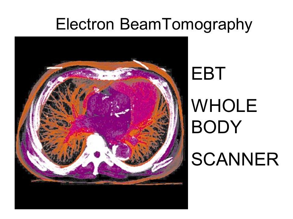 Electron BeamTomography EBT WHOLE BODY SCANNER