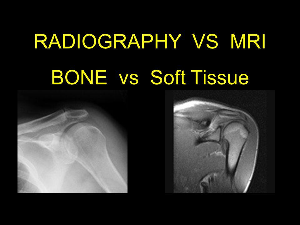 RADIOGRAPHY VS MRI BONE vs Soft Tissue