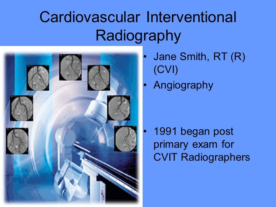 Cardiovascular Interventional Radiography Jane Smith, RT (R) (CVI) Angiography 1991 began post primary exam for CVIT Radiographers