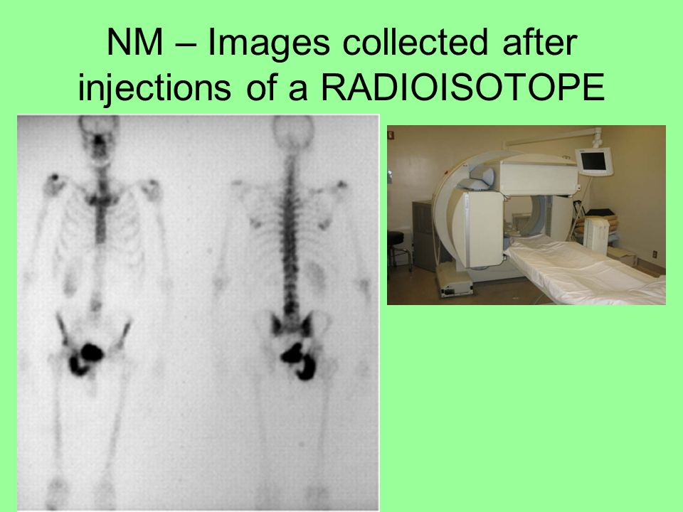 NM – Images collected after injections of a RADIOISOTOPE