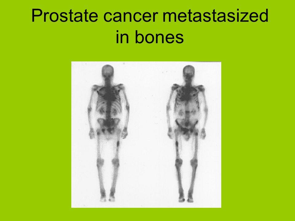Prostate cancer metastasized in bones