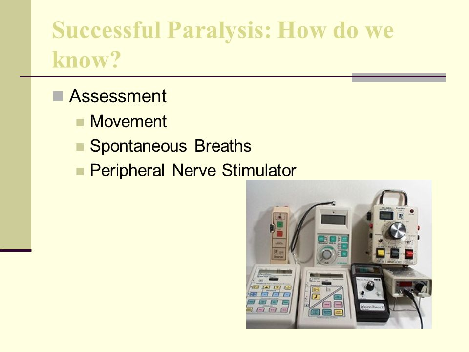 Successful Paralysis: How do we know? Assessment Movement Spontaneous Breaths Peripheral Nerve Stimulator