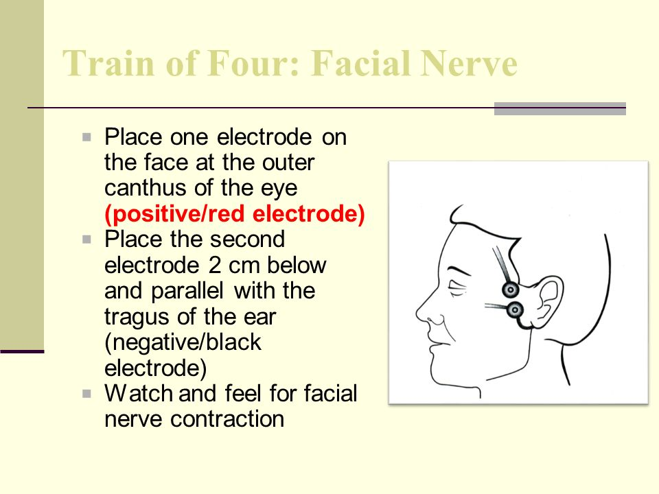 Train of Four: Facial Nerve Place one electrode on the face at the outer canthus of the eye (positive/red electrode) Place the second electrode 2 cm below and parallel with the tragus of the ear (negative/black electrode) Watch and feel for facial nerve contraction