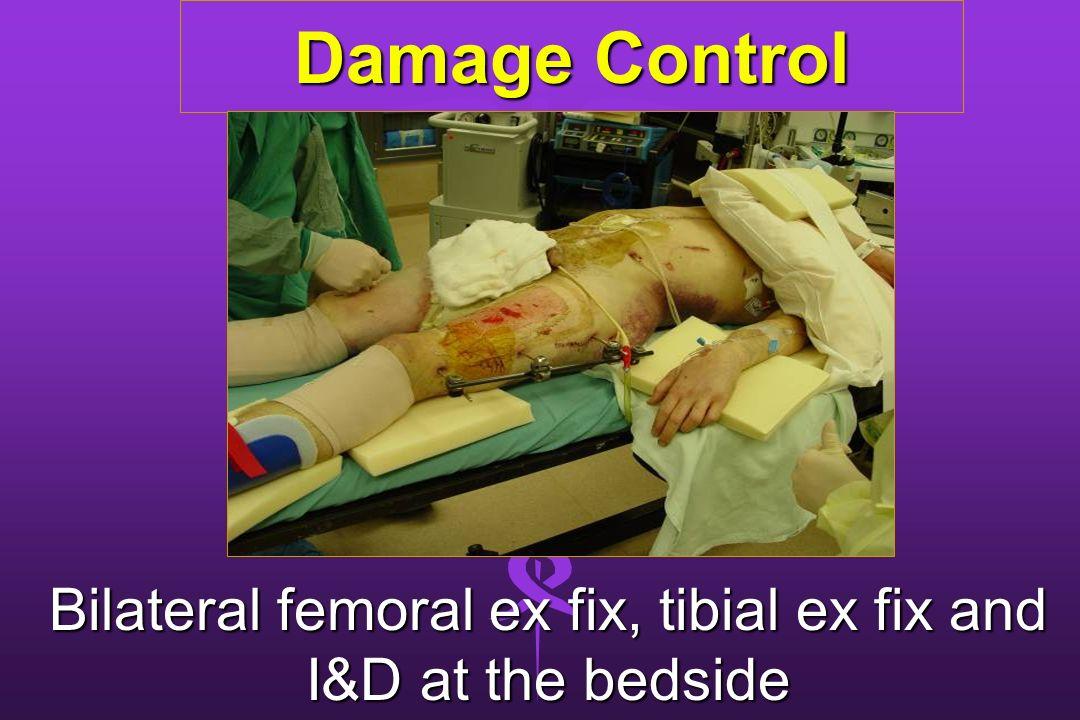 Damage Control Bilateral femoral ex fix, tibial ex fix and I&D at the bedside