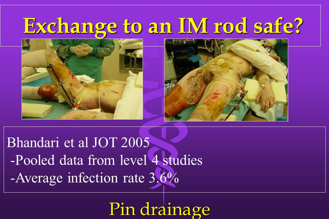 Exchange to an IM rod safe? Exchange to an IM rod safe? Bhandari et al JOT 2005 -Pooled data from level 4 studies -Average infection rate 3.6% Pin dra