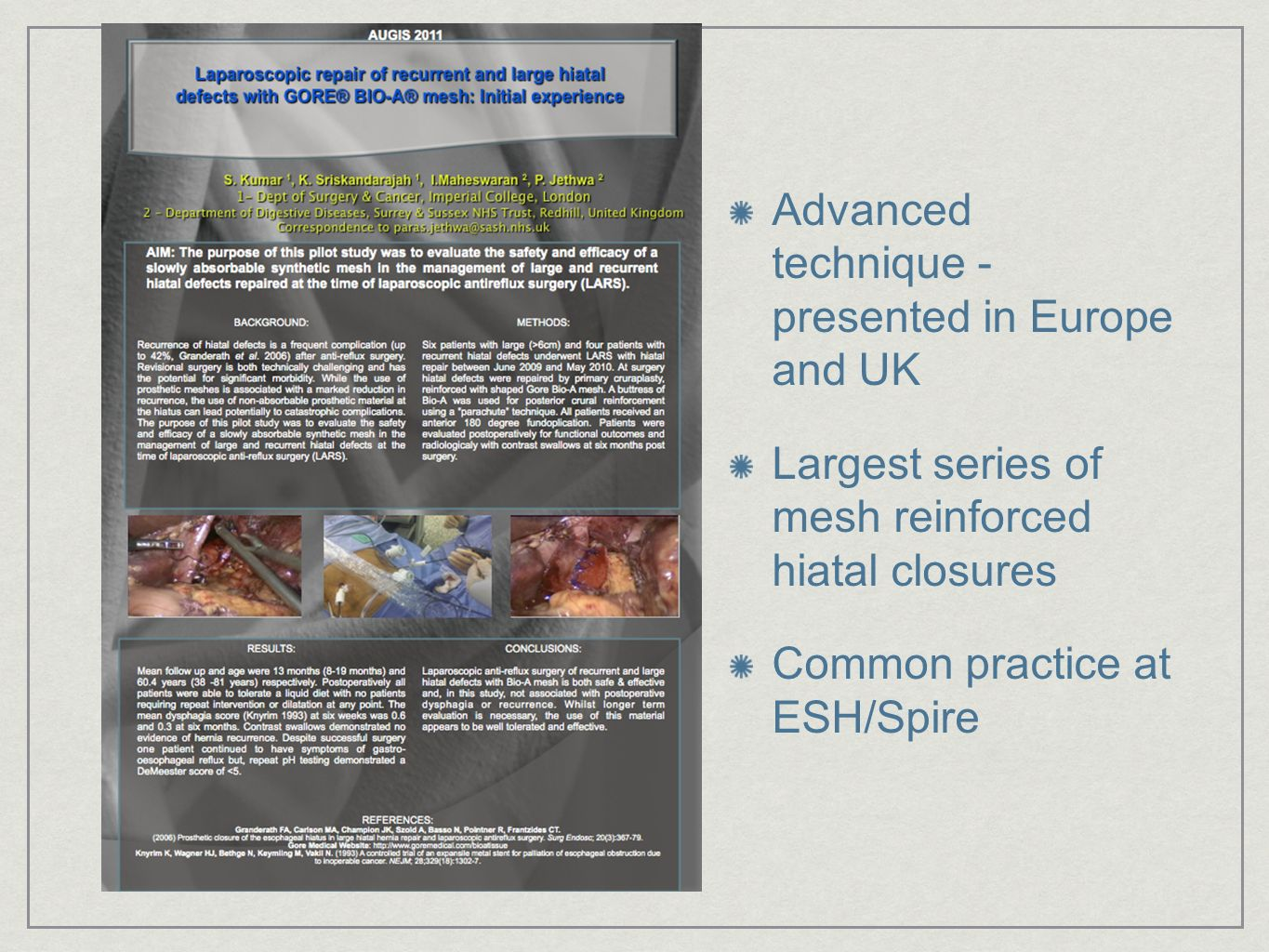 Advanced technique - presented in Europe and UK Largest series of mesh reinforced hiatal closures Common practice at ESH/Spire