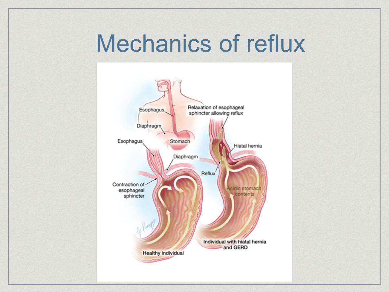 Mechanics of reflux