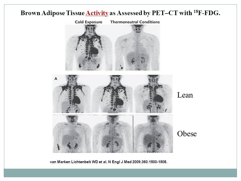 Brown Adipose Tissue Activity as Assessed by PET–CT with 18 F-FDG. van Marken Lichtenbelt WD et al. N Engl J Med 2009;360:1500-1508. Lean Obese