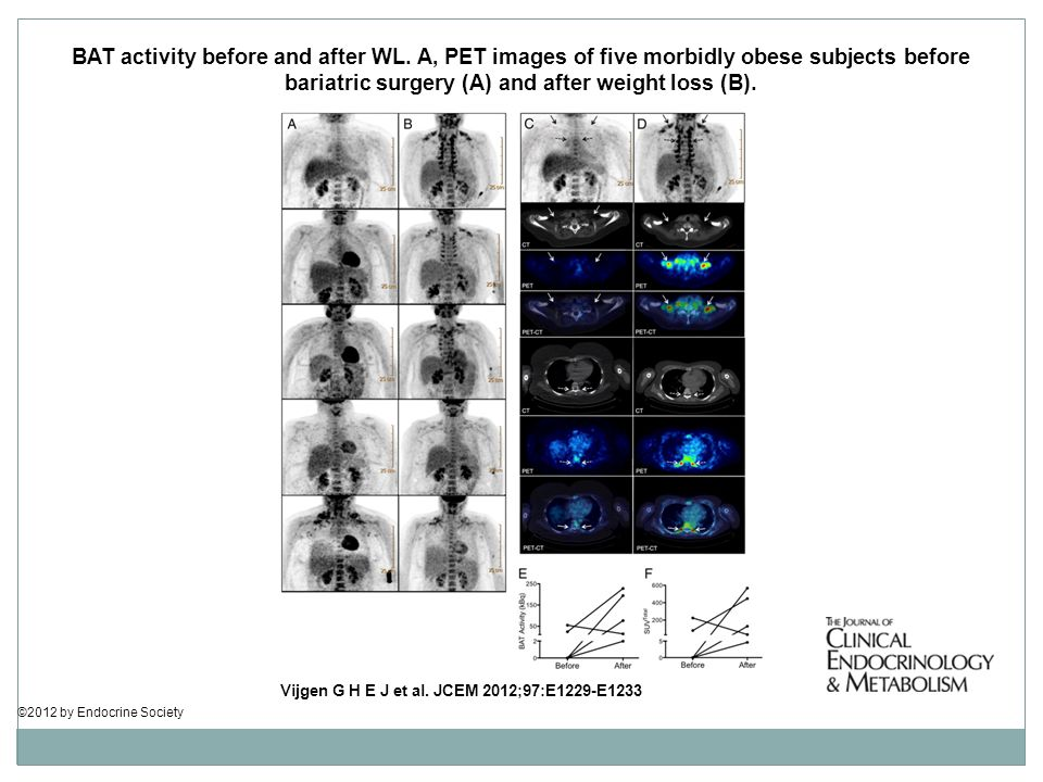 BAT activity before and after WL. A, PET images of five morbidly obese subjects before bariatric surgery (A) and after weight loss (B). Vijgen G H E J