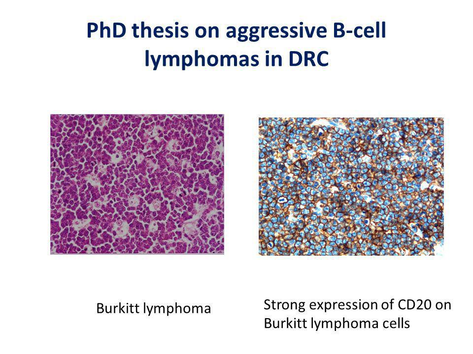 PhD thesis on aggressive B-cell lymphomas in DRC Burkitt lymphoma Strong expression of CD20 on Burkitt lymphoma cells