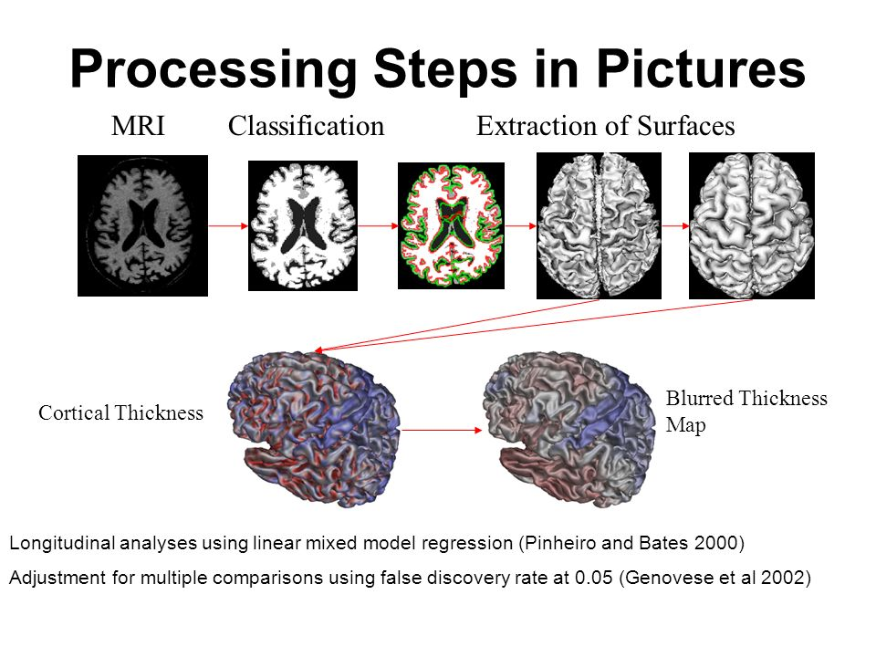 Processing Steps in Pictures MRIClassificationExtraction of Surfaces Cortical Thickness Blurred Thickness Map Longitudinal analyses using linear mixed model regression (Pinheiro and Bates 2000) Adjustment for multiple comparisons using false discovery rate at 0.05 (Genovese et al 2002)