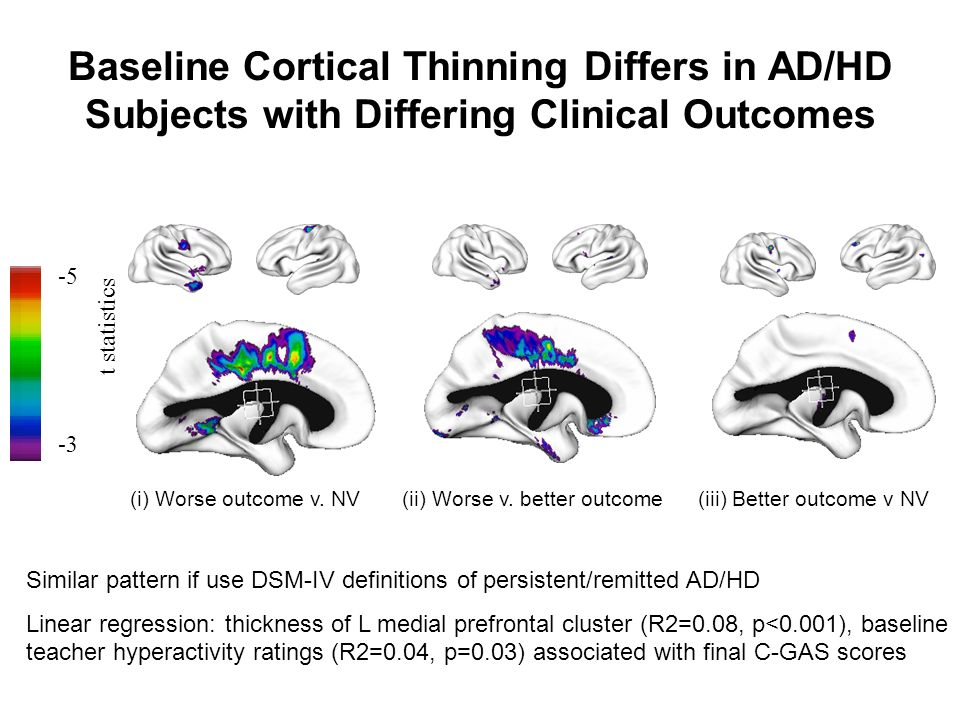 -5 -3 (ii) Worse v. better outcome(i) Worse outcome v. NV(iii) Better outcome v NV t statistics Baseline Cortical Thinning Differs in AD/HD Subjects w