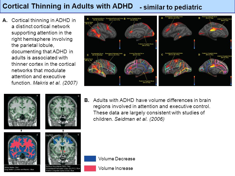 Cortical Thinning in Adults with ADHD Volume Decrease Volume Increase B. Adults with ADHD have volume differences in brain regions involved in attenti