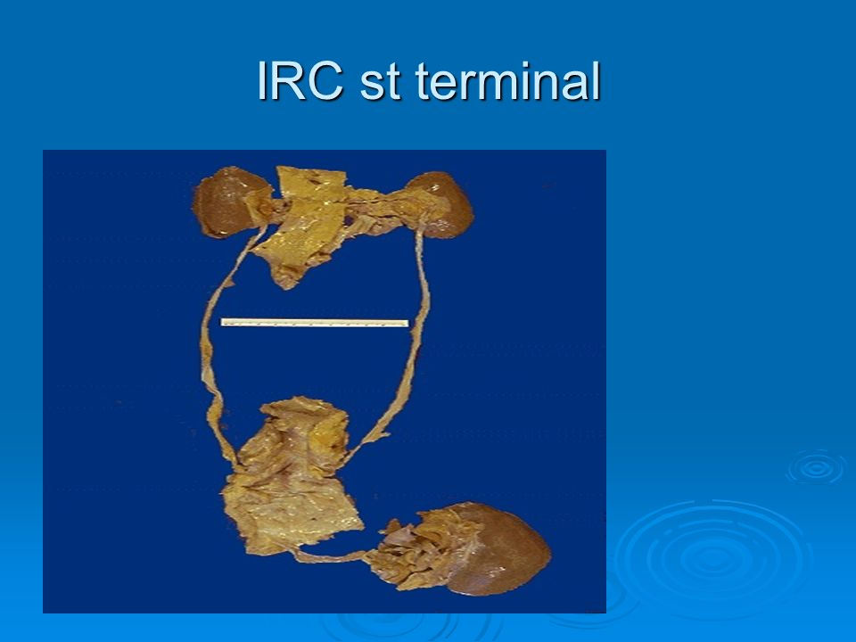 IRC st terminal