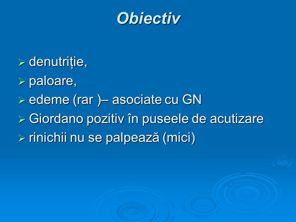 Obiectiv denutriţie, denutriţie, paloare, paloare, edeme (rar )– asociate cu GN edeme (rar )– asociate cu GN Giordano pozitiv în puseele de acutizare