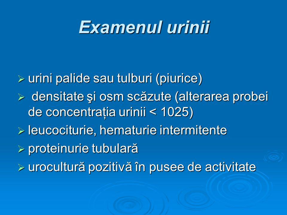 Examenul urinii urini palide sau tulburi (piurice) urini palide sau tulburi (piurice) densitate şi osm scăzute (alterarea probei de concentraţia urini