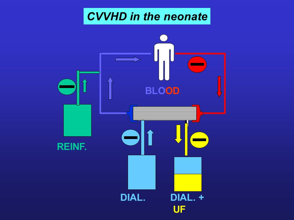 CVVHD in the neonate REINF. DIAYSAT E BLOOD DIAL.DIAL. + UF