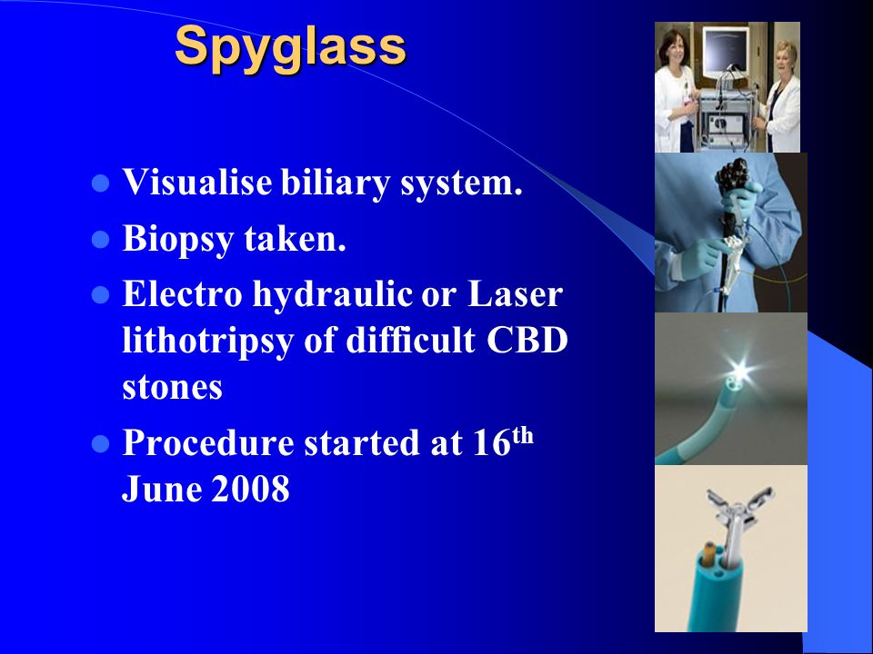 Spyglass Visualise biliary system. Biopsy taken. Electro hydraulic or Laser lithotripsy of difficult CBD stones Procedure started at 16 th June 2008