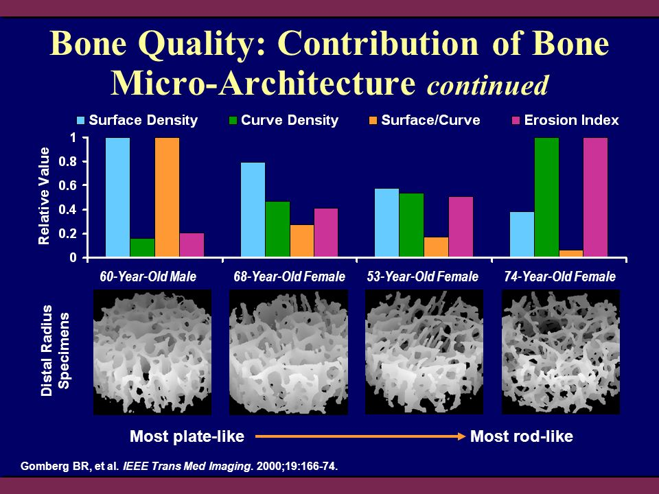 Bone Quality: Contribution of Bone Micro-Architecture continued Most plate-likeMost rod-like 60-Year-Old Male68-Year-Old Female 53-Year-Old Female74-Year-Old Female Distal Radius Specimens Gomberg BR, et al.