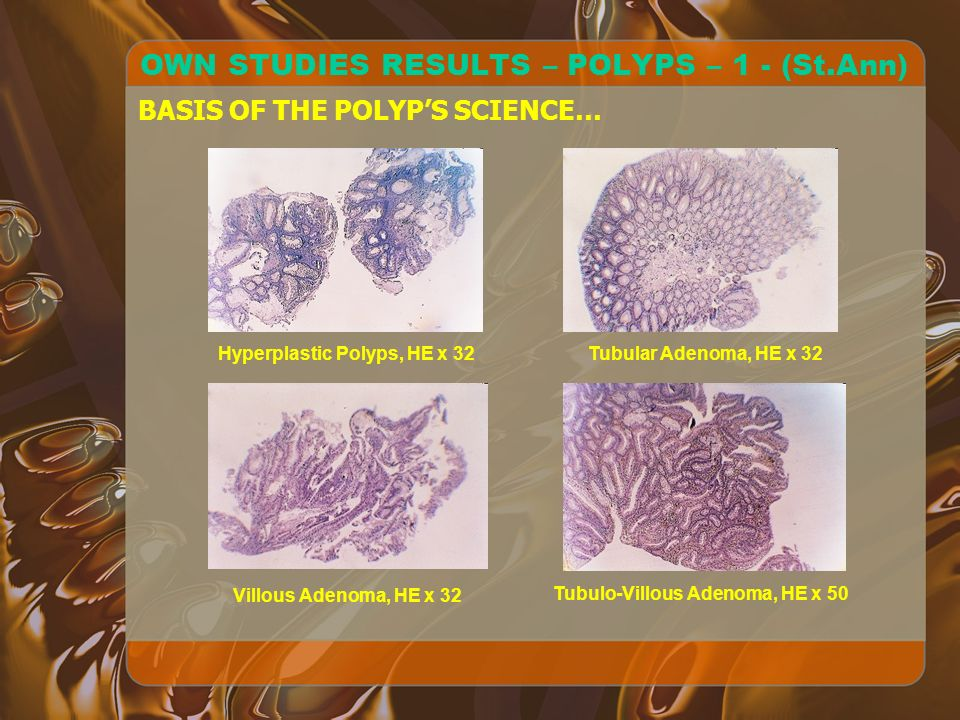 OWN STUDIES RESULTS – POLYPS – 1 - (St.Ann) BASIS OF THE POLYPS SCIENCE… Hyperplastic Polyps, HE x 32Tubular Adenoma, HE x 32 Villous Adenoma, HE x 32