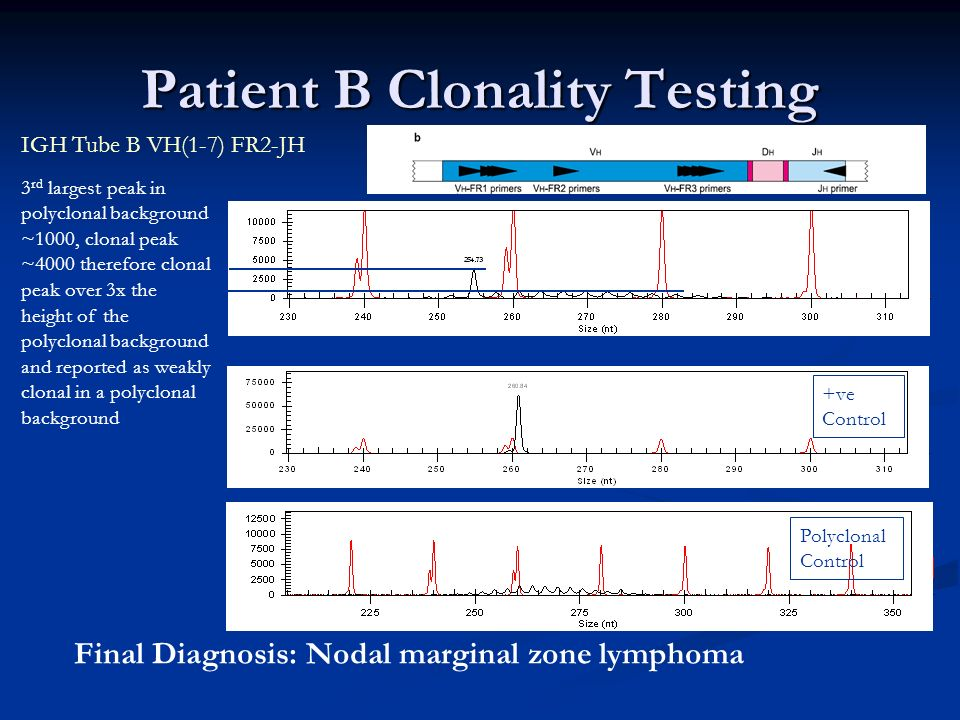 Patient B Clonality Testing 3 rd largest peak in polyclonal background ~1000, clonal peak ~4000 therefore clonal peak over 3x the height of the polycl