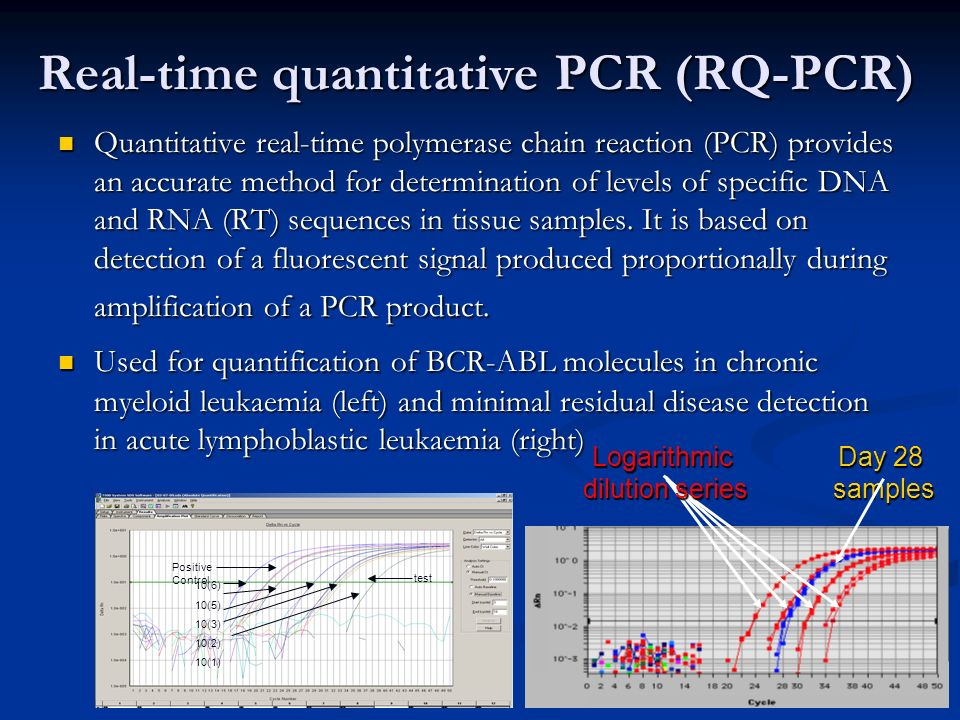 Real-time quantitative PCR (RQ-PCR) Quantitative real-time polymerase chain reaction (PCR) provides an accurate method for determination of levels of