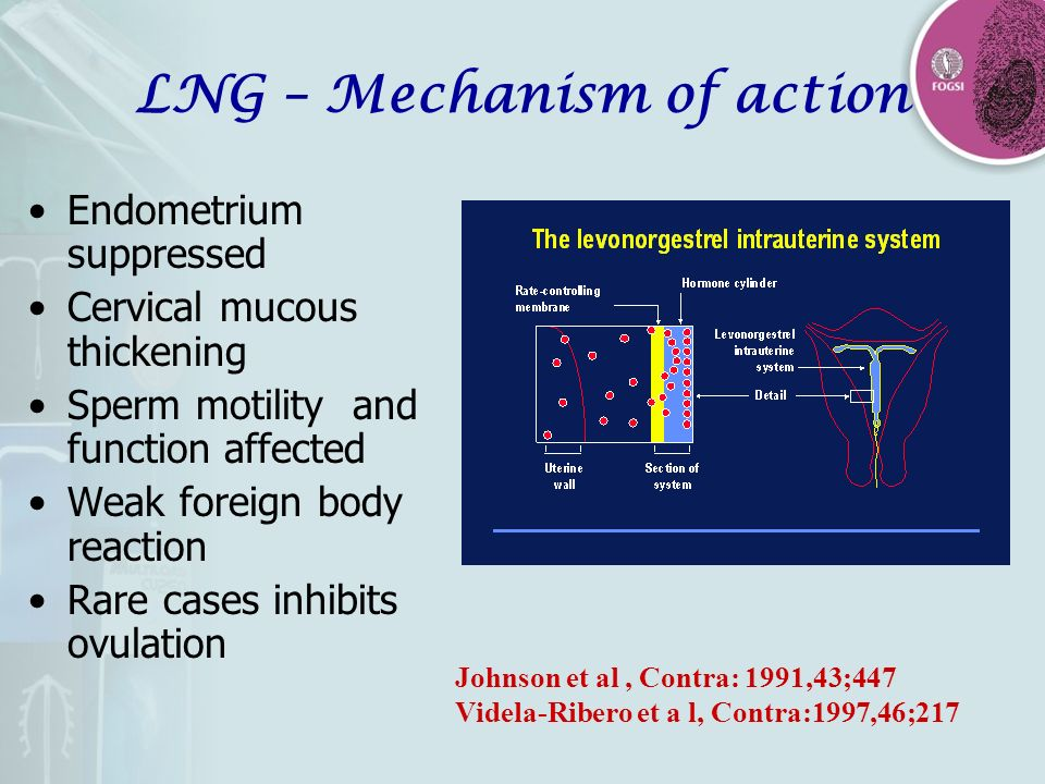 LNG – Mechanism of action Endometrium suppressed Cervical mucous thickening Sperm motility and function affected Weak foreign body reaction Rare cases