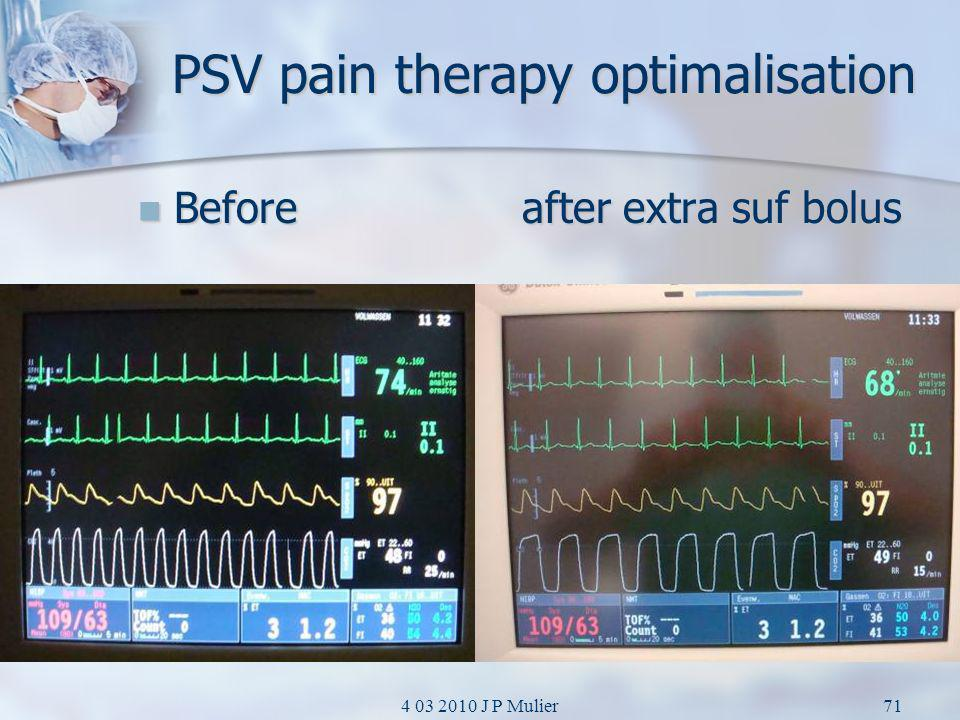 4 03 2010 J P Mulier71 PSV pain therapy optimalisation Before after extra suf bolus Before after extra suf bolus