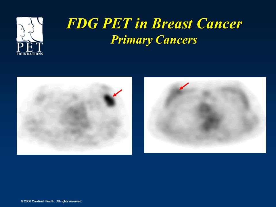 © 2006 Cardinal Health. All rights reserved. FDG PET in Breast Cancer Primary Cancers