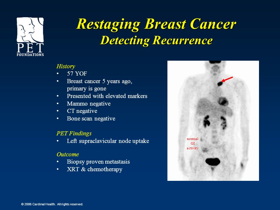 © 2006 Cardinal Health. All rights reserved. Restaging Breast Cancer Detecting Recurrence History 57 YOF Breast cancer 5 years ago, primary is gone Pr