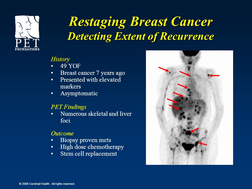 © 2006 Cardinal Health. All rights reserved. History 49 YOF Breast cancer 7 years ago Presented with elevated markers Asymptomatic PET Findings Numero
