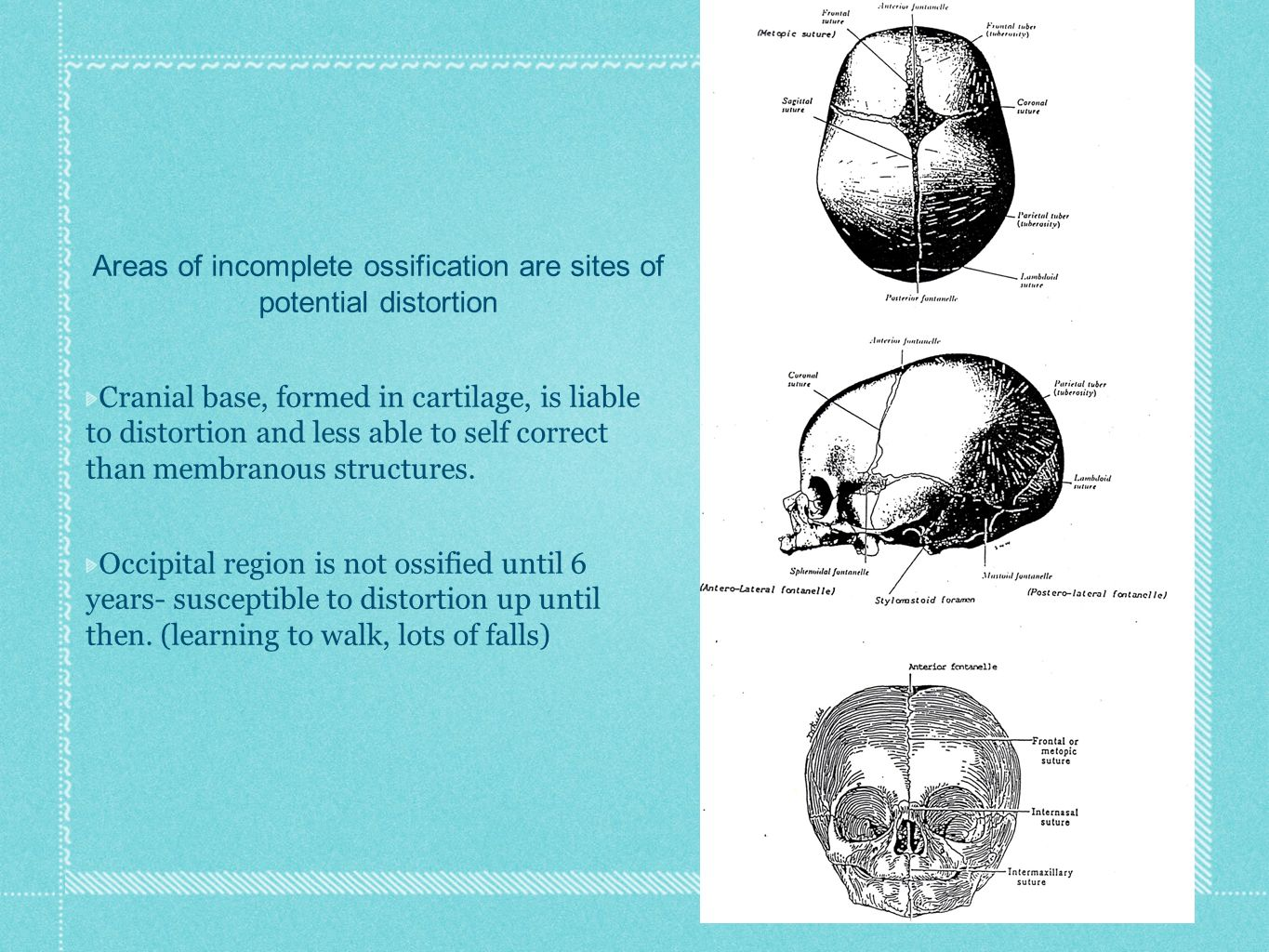 Areas of incomplete ossification are sites of potential distortion Cranial base, formed in cartilage, is liable to distortion and less able to self correct than membranous structures.