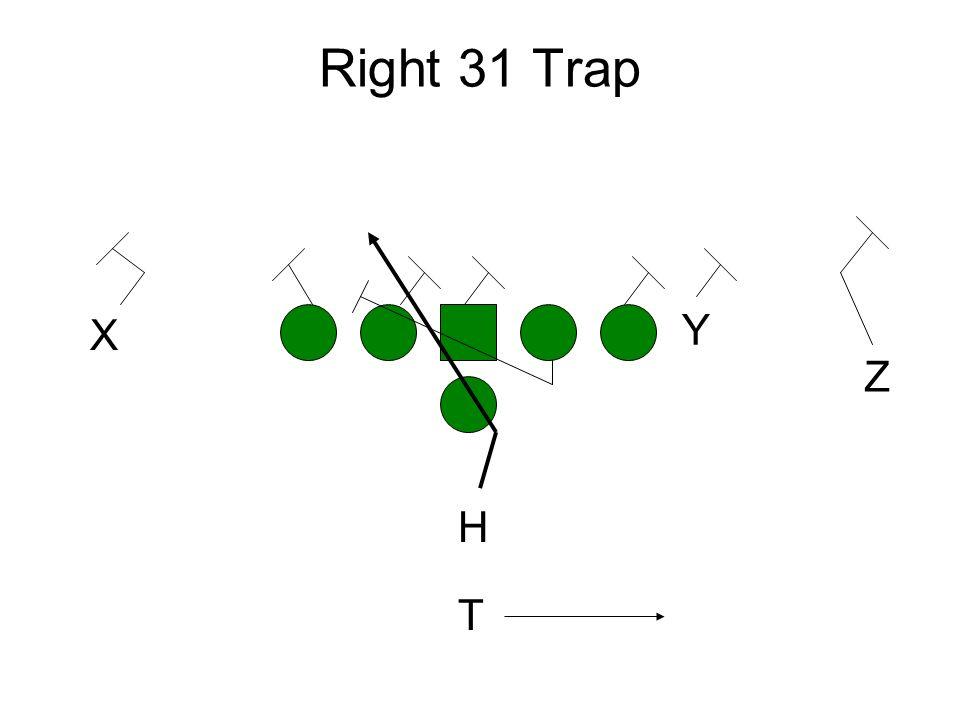 Right 31 Trap Y Z X H T