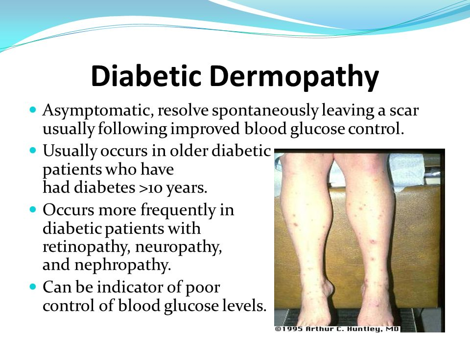 Diabetic Dermopathy Asymptomatic, resolve spontaneously leaving a scar usually following improved blood glucose control. Usually occurs in older diabe
