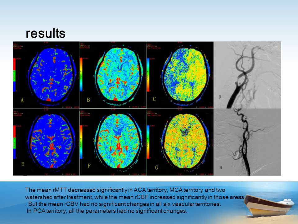 conclusion Carotid artery stenting yields satisfactory cerebral perfusion in ACA territory, MCA territory,basal ganglia,frontal watershed and posterior watershed