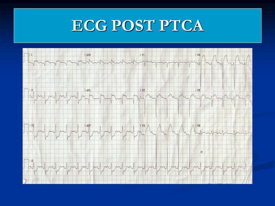 ECG POST PTCA