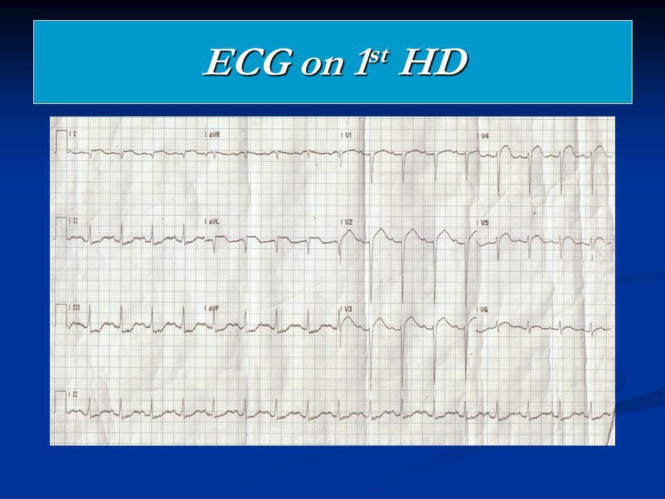 ECG on 1 st HD