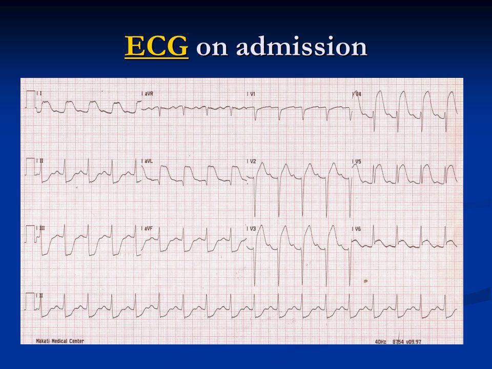 ECGECG on admission ECG