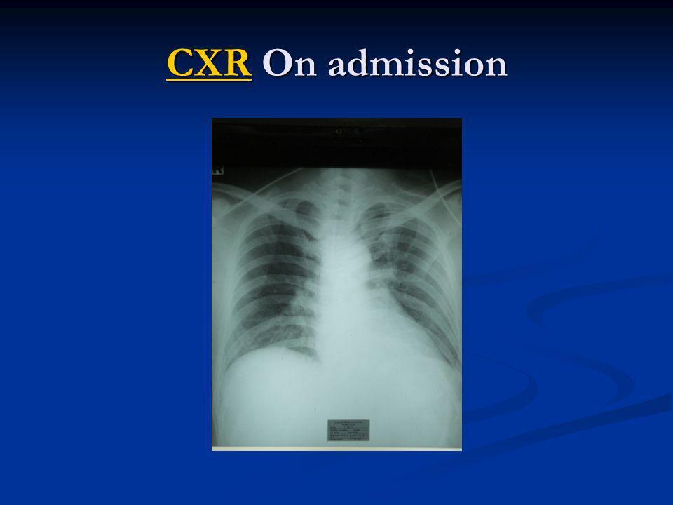 CXRCXR On admission CXR