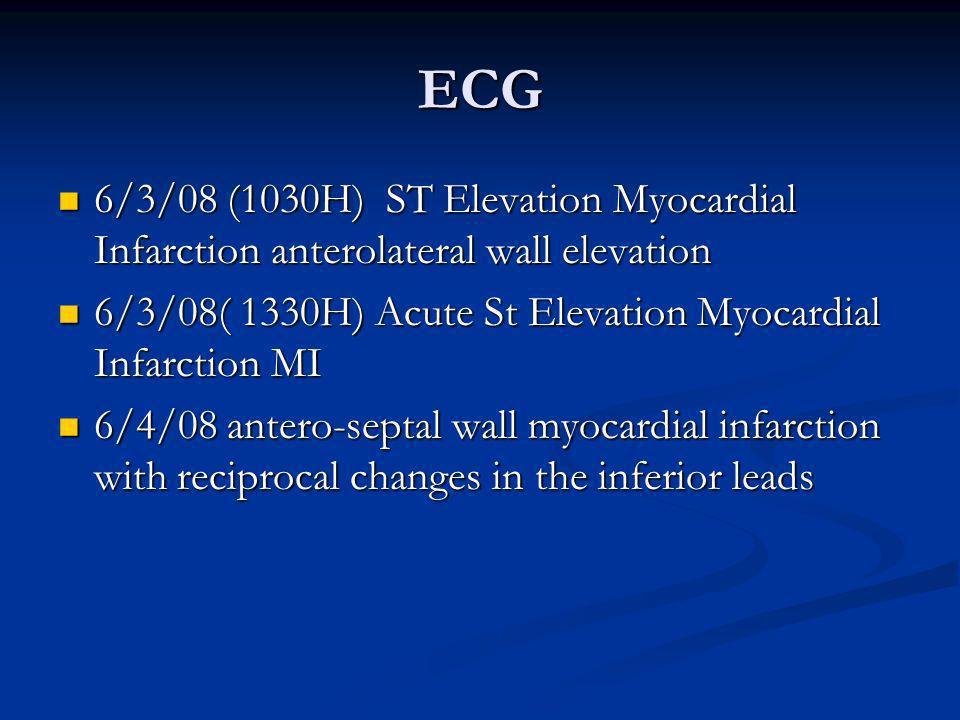 ECG 6/3/08 (1030H) ST Elevation Myocardial Infarction anterolateral wall elevation 6/3/08 (1030H) ST Elevation Myocardial Infarction anterolateral wal