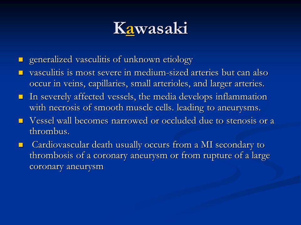Kawasaki a generalized vasculitis of unknown etiology generalized vasculitis of unknown etiology vasculitis is most severe in medium-sized arteries bu