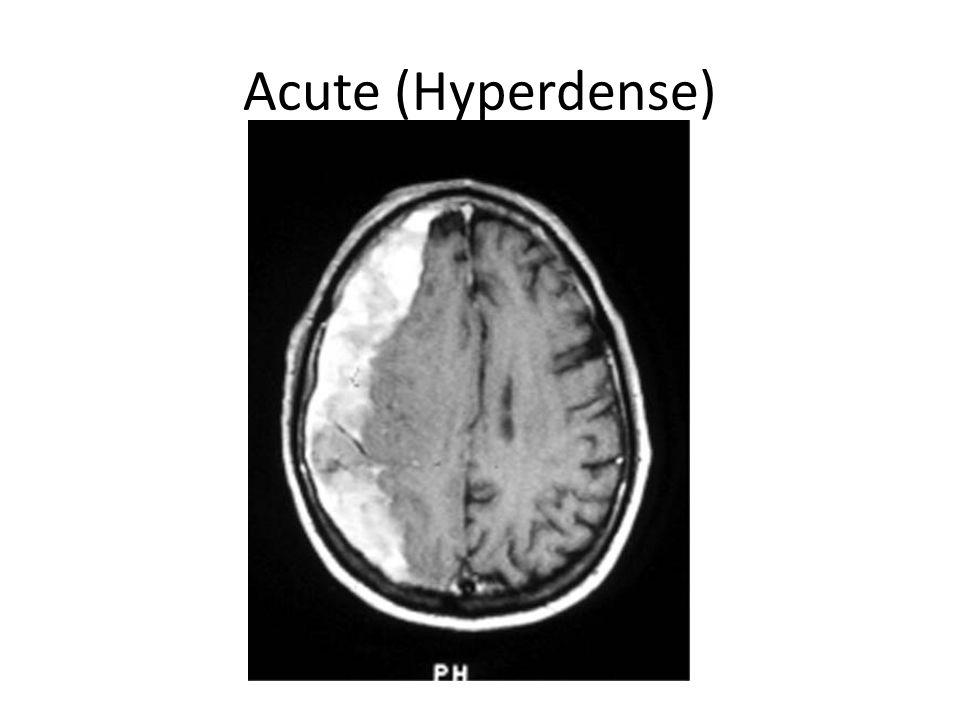 Acute (Hyperdense)
